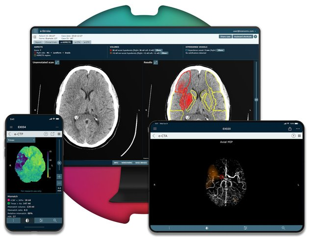 Brainomix's e-Stroke software is being used to help stroke patients.